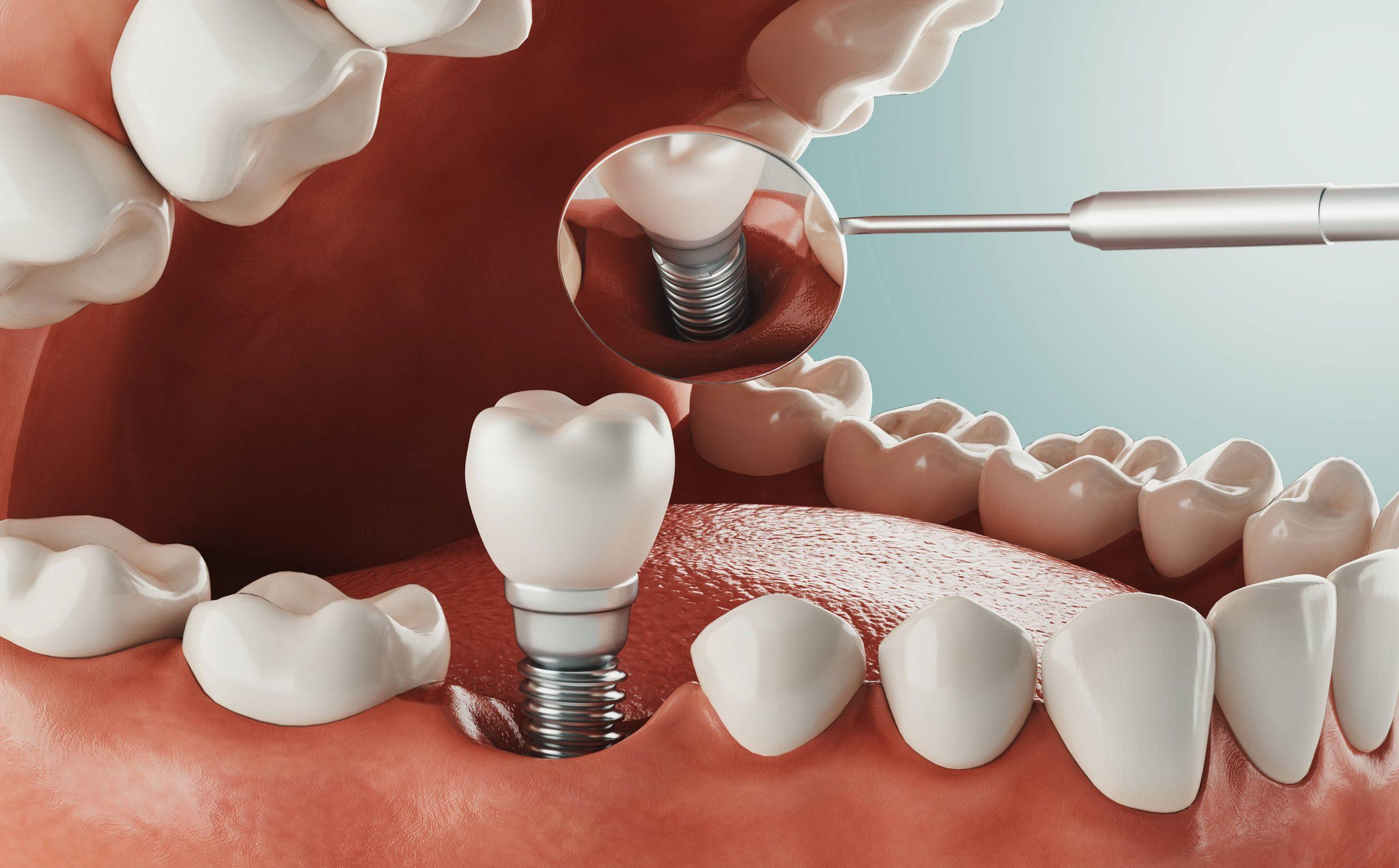 Darstellung eines Zahnimplantats im Mundraum