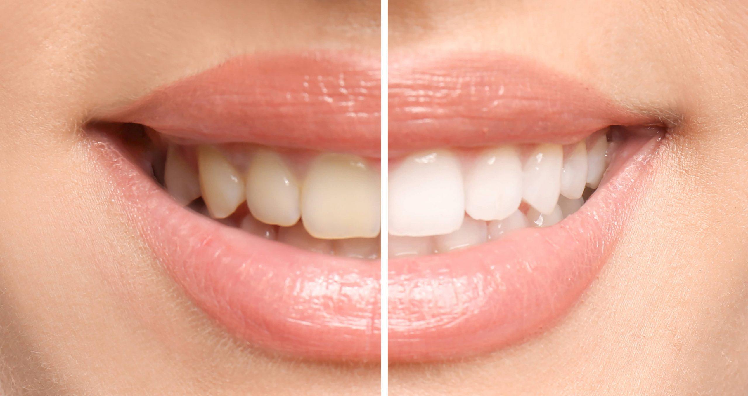 Zähne nach einer Bleachingbehandlung - Zahnarzt München Schwabing